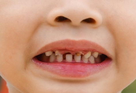 Интервю: Около 50% от децата имат кариеси, преди да навършат 6 години