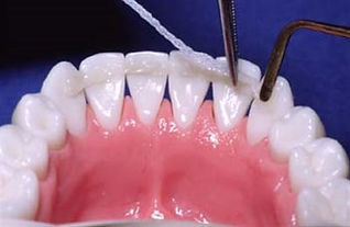 шиниране на зъбите,пародонтолог,стоматолог,пародонтоза,пародонтит,кървене на венците,Стоматологична клиника София,д-р Мария Дюкенджиева