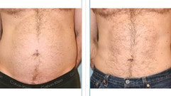 Liposuction_Before_After-1296x728-Body3.
