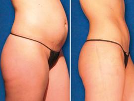 fat+treatment02.jpg