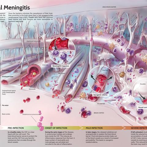 penumococcal meningitis