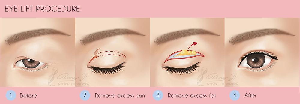 eye-lift-surgery