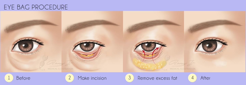 plastic surgery eye bag removal