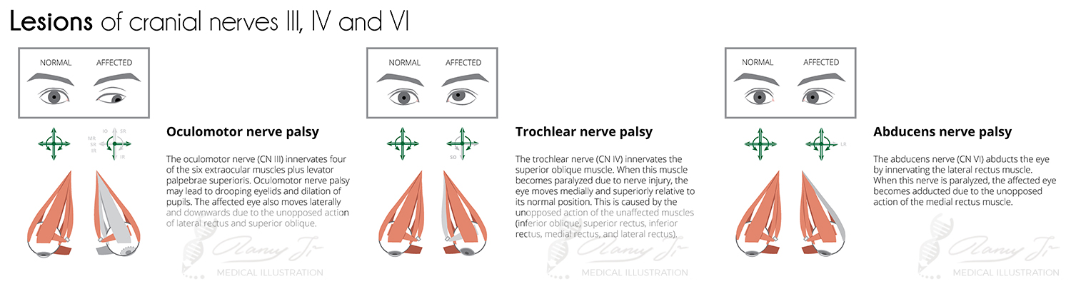 lesions of cranial nerves