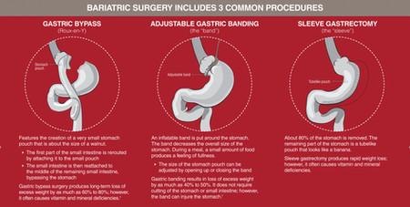 Bariatric-surgery.jpg