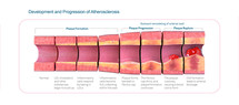 Progression of Atherosclerosis Model