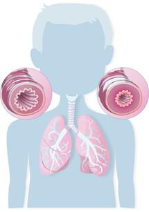 Pediatric Asthma Orientation Fig.jpg
