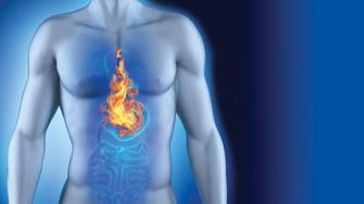 Conseils en cas de reflux gastriques