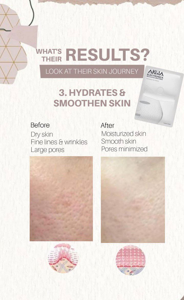 Hydrates & Smoothen Skin