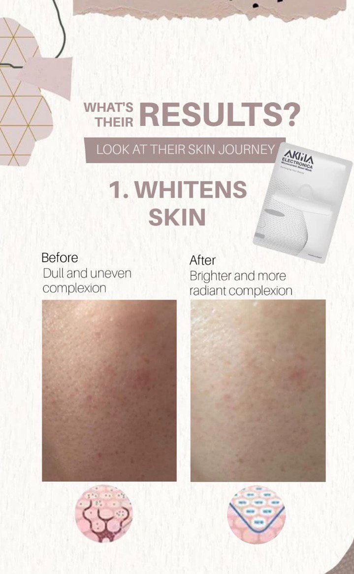Whitens Skin
