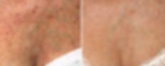 hyperpigmentation 2.png