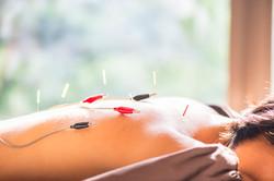 electro-acupuncture Las Vegas pain management