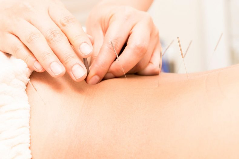 Acupuncture Las Vegas Pain Management