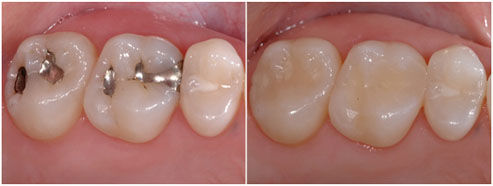 metal fillings| white fillings