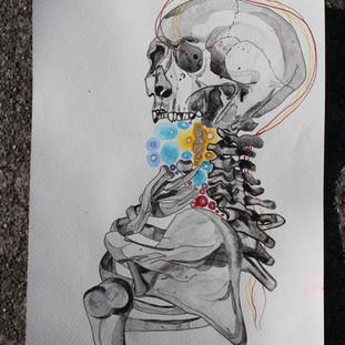 Chronic Pain, I