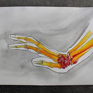 Chronic Pain, IV