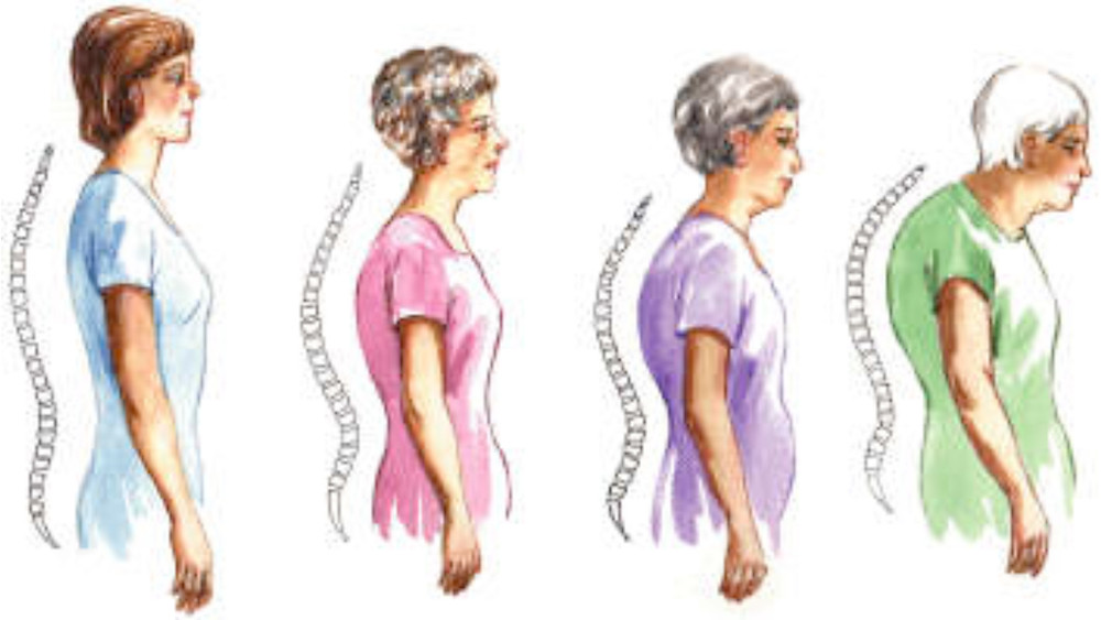 forward head posture, thoracic kyphosis, bad posture prevention exercises