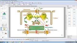 Тахикардия с широким комплексом QRS