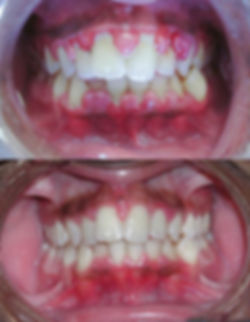 Gingivitis_before_and_after-2.jpg