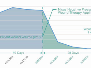 Case Study: Treating Stage IV Pressure Ulcer with Nisus Pump