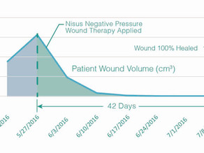 Case Study: Treating Venous Stasis with Nisus Pump