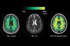 Myelin Imaging in Clinical Practice