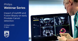 Introduction to Prostate mpMRI and PI-RADS and The Impact of mpMRI and Fusion Biopsy on early Prostate Cancer detection