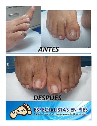 Onicomicosis (hongos en los pies)