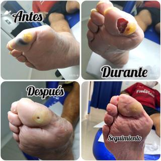 Ulcera por presion.JPG