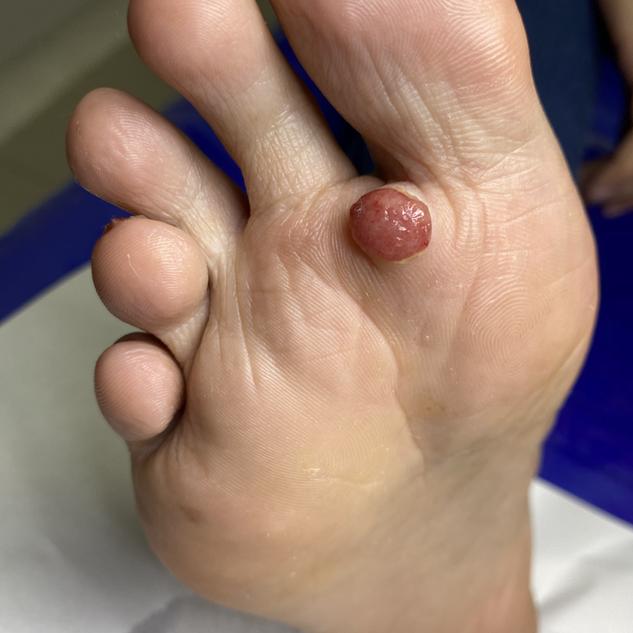 Hemangioma1.HEIC