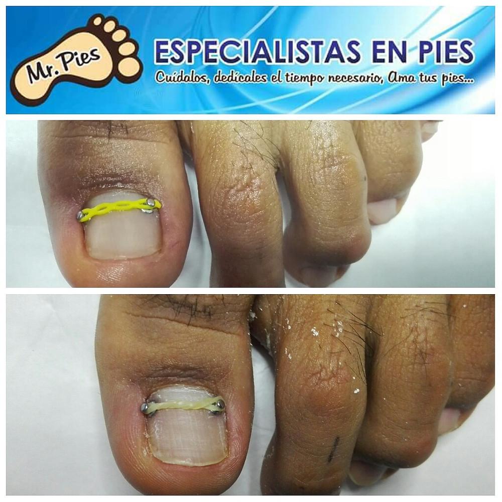 uñas pies ortonixia