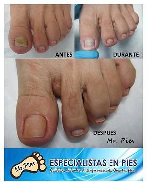 Onicomicosis2.jpg