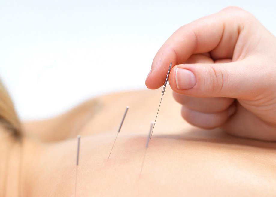 Double-sides Acupuncture