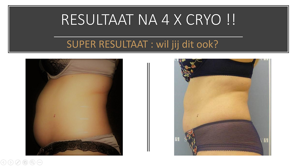 FATescape/cryolipolyse/snel afvallen