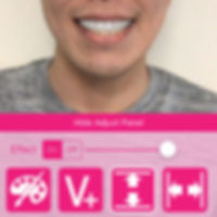 AR teeth.jpg