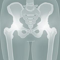 Hip Technical Illustration