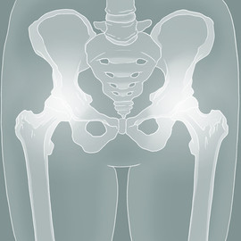 Hip Technical Illustration