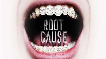 Rootcause.jpg