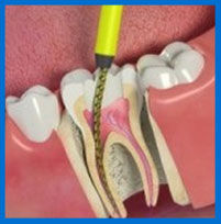 Root Canal Nicholasville Ky