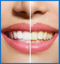 Teeth Whitening Service Nicholasville Ky