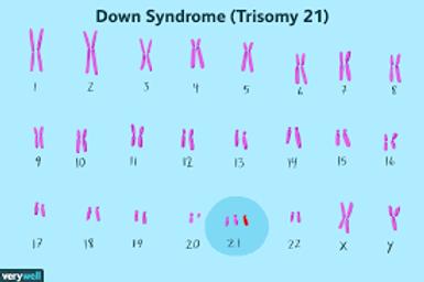 trisomy.png