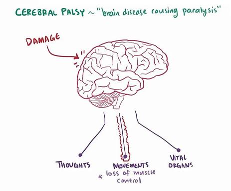 cerebralpalsy 2.png