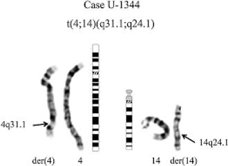 Autism chromosome.png