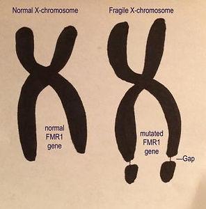 fragile-x-gene.jpg