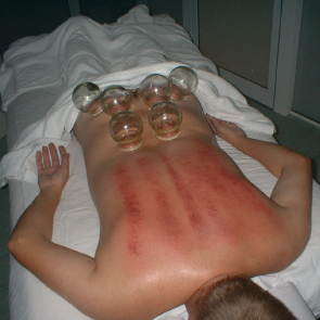 Sliding-Cupping 2.png