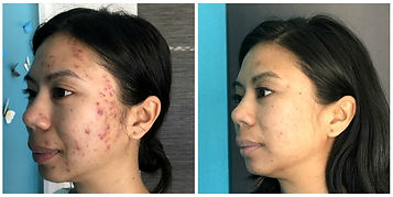 Before and After Microneedling.jpg