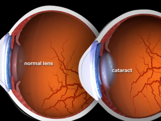 Detecting Cataracts and Getting the Help Seniors Need