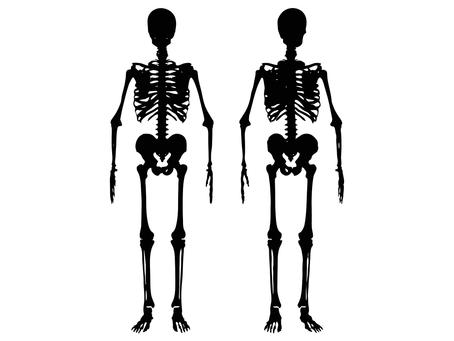 Dia Mundial e Nacional da Osteoporose (20/10): Como prevenir o impacto da doença