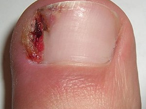 Common Toenail Conditions