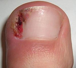 Common Toenail Conditions